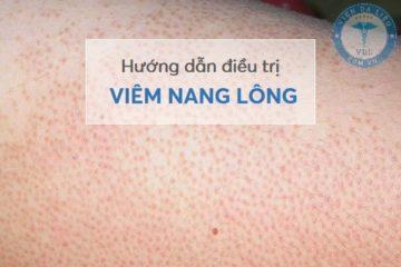 dieu_tri_viem_nang_long điều trị viêm nang lông