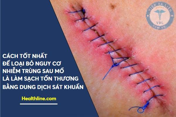 nhiem_trung_vet_mo nhiễm trùng vết mổ