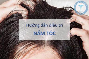 Điều trị nấm tóc theo hướng dẫn của Bộ Y tế
