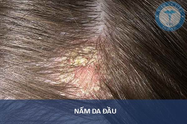 4. Nấm da đầu 1