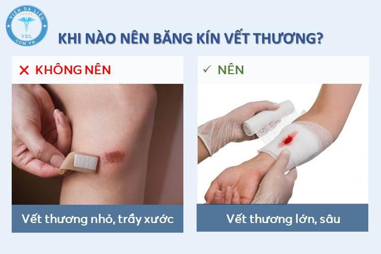 II. Khi nào nên băng kín vết thương? 1