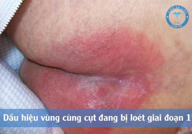 I. Nguyên tắc chung khi chăm sóc vết loét xương vùng cùng cụt 1