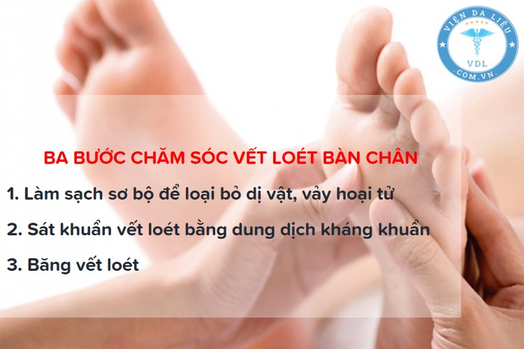 loet-ban-chan-tieu-duong loét bàn chân tiểu đường