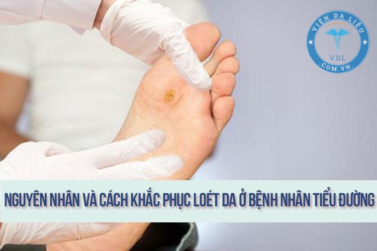 Nguyên nhân và biện pháp khắc phục loét da ở bệnh nhân tiểu đường 1