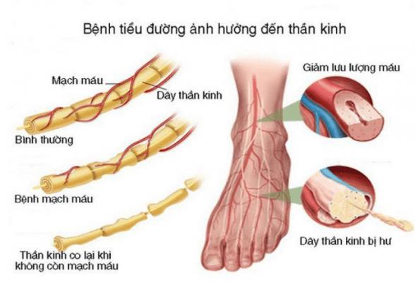 a. Tổn thương thần kinh ngoại biên 1