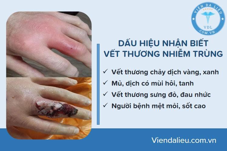 vet-thuong-ho vết thương hở