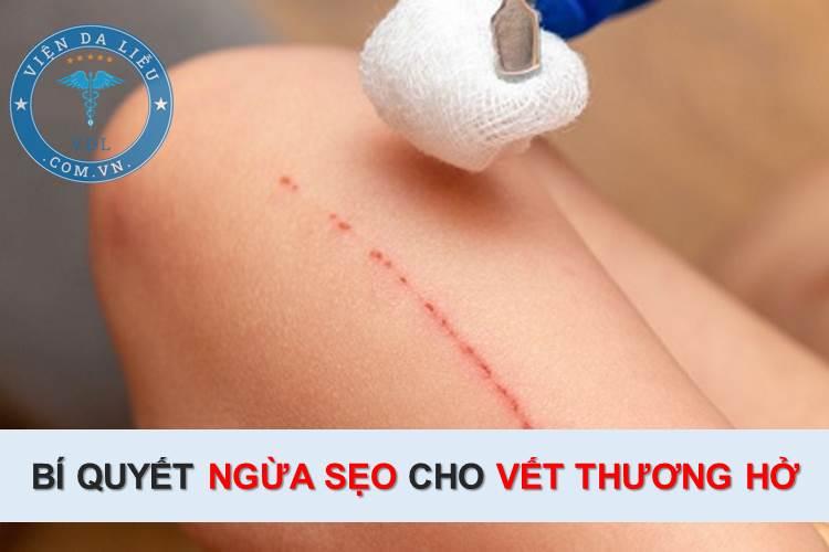 Bí quyết ngừa sẹo cho vết thương hở ngoài da 1