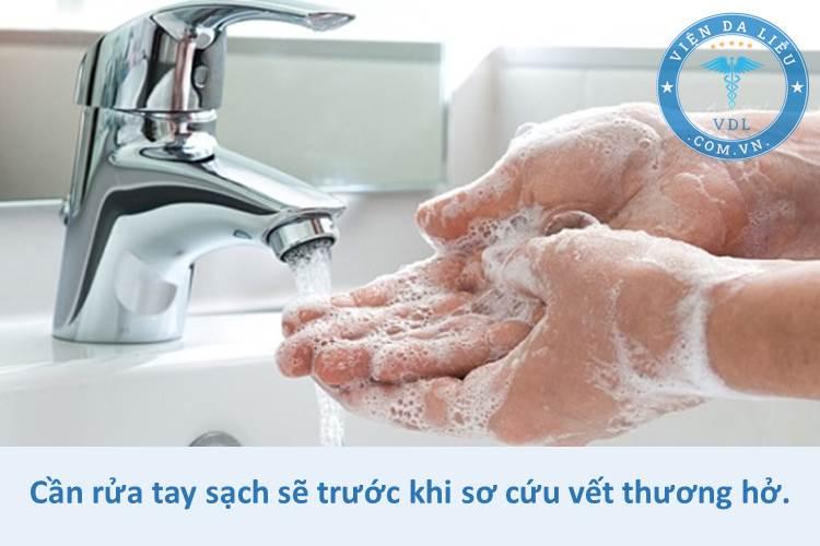 1. Rửa tay sạch sẽ trước khi sơ cứu 1