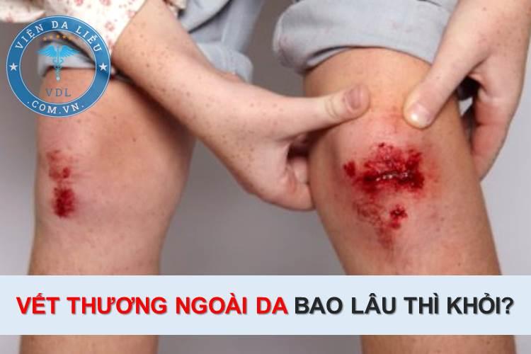 Vết thương ngoài da bao lâu thì khỏi? 1