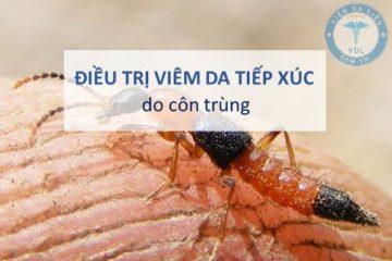Điều trị viêm da tiếp xúc do côn trùng theo Bộ Y tế hướng dẫn