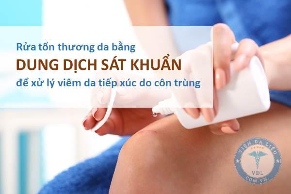 III. Điều trị viêm da tiếp xúc do côn trùng theo hướng dẫn của Bộ Y tế 1
