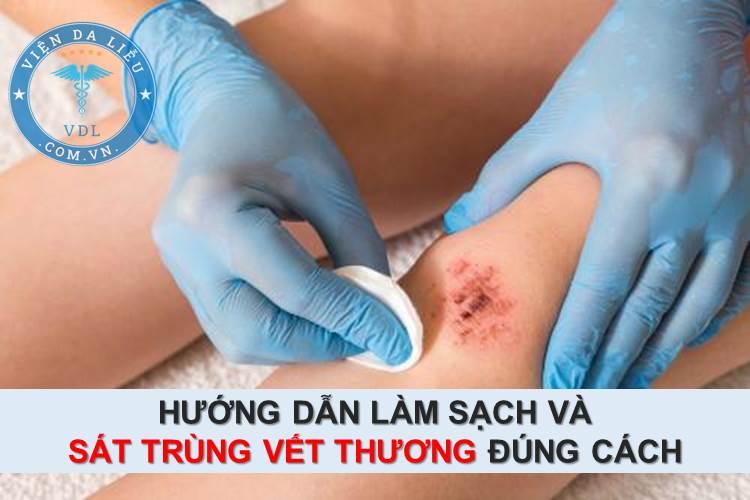 Hướng dẫn làm sạch và sát trùng vết thương đúng cách 1