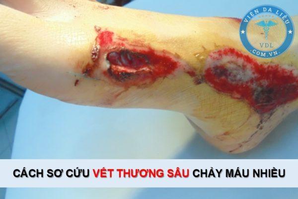 Cách sơ cứu vết thương sâu bị chảy máu nhiều