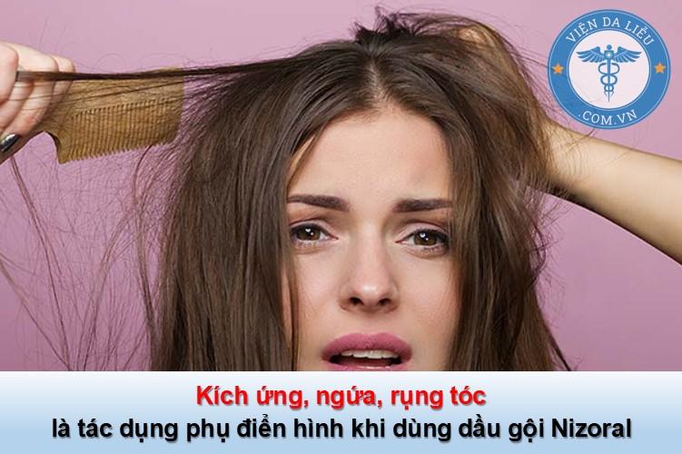 nấm da đầu