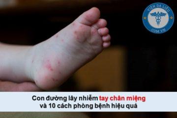 Con đường lây nhiễm và 10 cách phòng bệnh tay chân miệng hiệu quả nhất