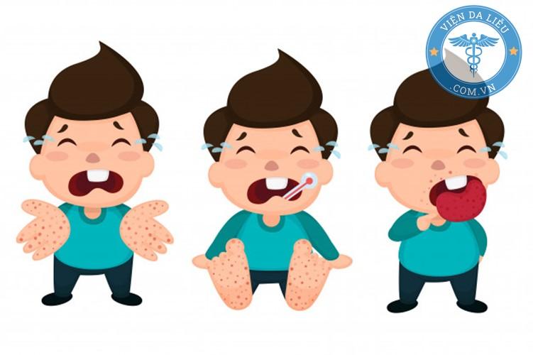 phòng bệnh tay chân miệng phong-benh-tay-chan-mieng-6