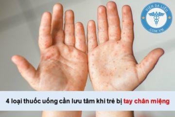 4 loại thuốc uống cần lưu tâm khi trẻ bị chân tay miệng