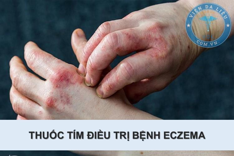 2. Sát trùng vết thương 1