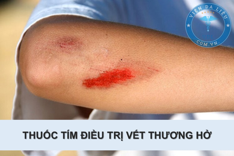 1. Thuốc tím có dùng được cho vết thương hở 1