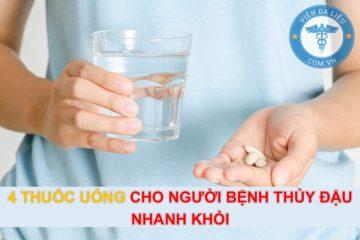 4 thuốc uống cho người bệnh thủy đậu nhanh khỏi