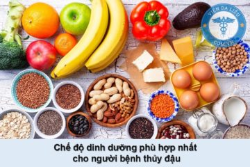 [Giải đáp] Thủy đậu ăn gì, kiêng gì? Chế độ dinh dưỡng như nào phù hợp?