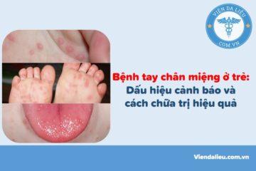 Bệnh tay chân miệng ở trẻ: Dấu hiệu cảnh báo và cách chữa trị hiệu quả