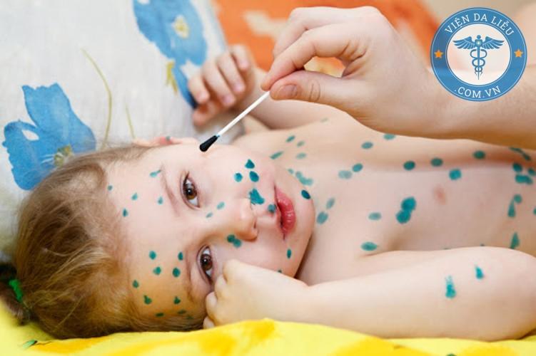 1. Điều trị bệnh thủy đậu bằng xanh methylen 1