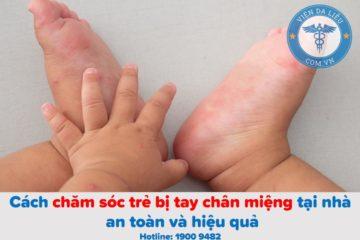 5 điều mẹ cần biết để chăm sóc trẻ bị tay chân miệng tại nhà an toàn, hiệu quả