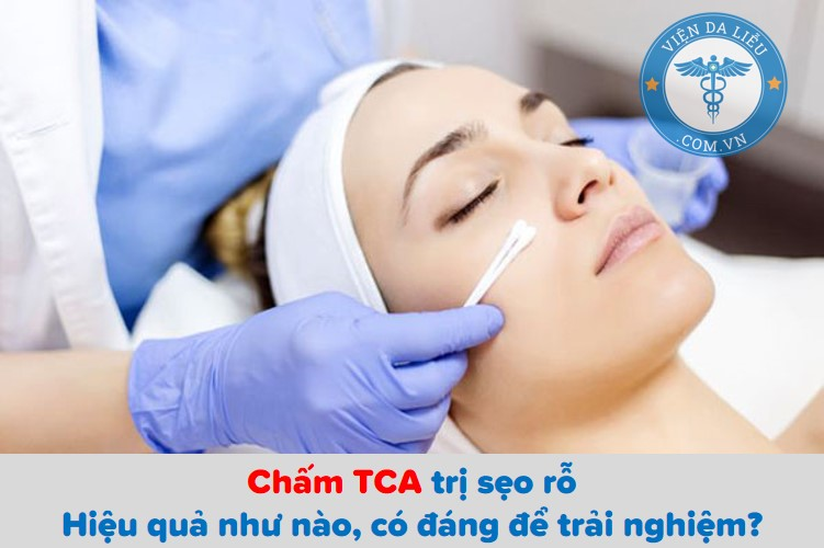 Chấm TCA trị sẹo rỗ: Hiệu quả như nào, có đáng để trải nghiệm? 1