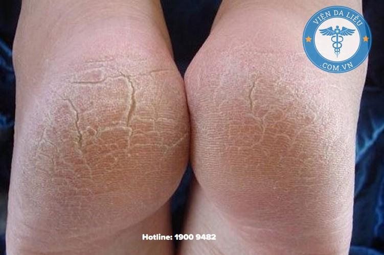 1. Dưỡng ẩm da, chống nứt nẻ 1