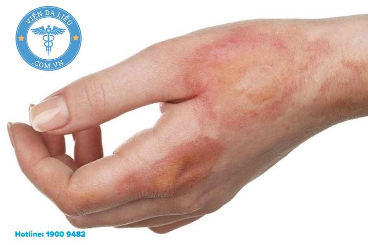 1. Kẽm oxyd có tác dụng làm săn da, sát khuẩn nhẹ, thường được sử dụng để bôi tại chỗ. 1