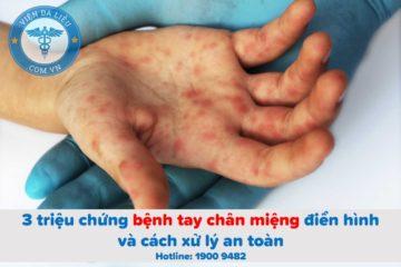 3 triệu chứng bệnh tay chân miệng điển hình và cách xử lý an toàn
