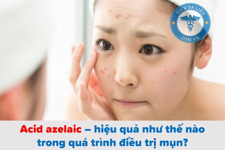 Acid azelaic: Bí kíp trị mụn, mờ thâm, làm sáng da hiệu quả bạn cần biết 1