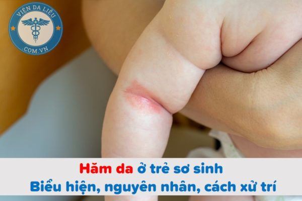 Hăm da ở trẻ sơ sinh: Biểu hiện, nguyên nhân, cách xử trí