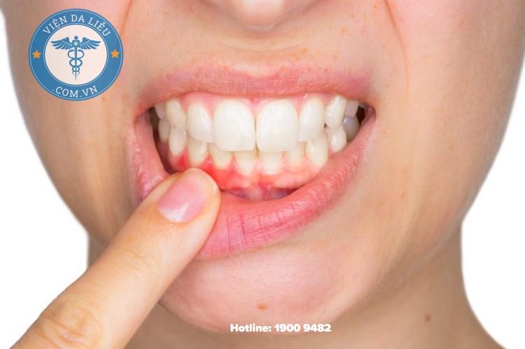 3. Viêm lợi, chảy máu chân răng 1