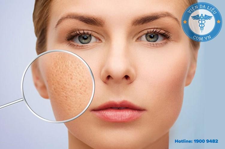 II. Thành phần – công dụng của gel trị sẹo Strataderm 1
