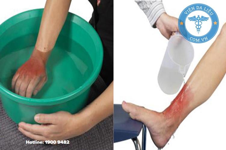 Bước 2: Làm mát vùng da bị bỏng 1
