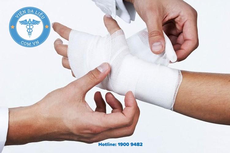 III. Những lưu ý trong quá trình chăm sóc vết bỏng 1