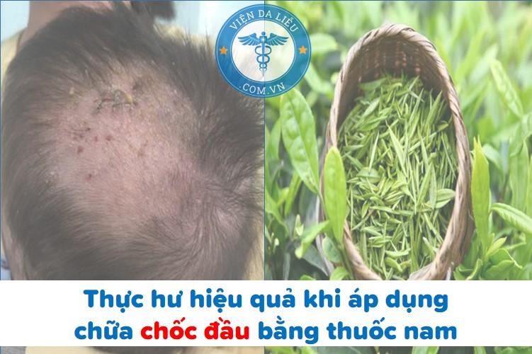 Thực hư hiệu quả khi áp dụng chữa chốc đầu bằng thuốc nam 1